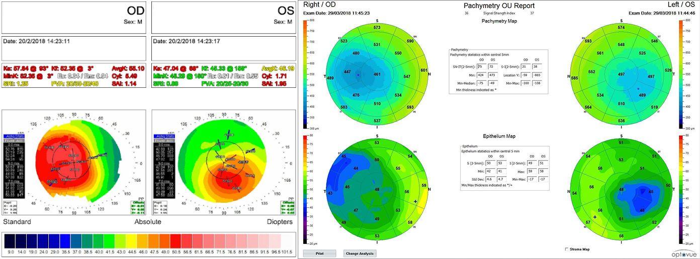 Imagen 2. Topografía (izquierda) y paquimetría (derecha)