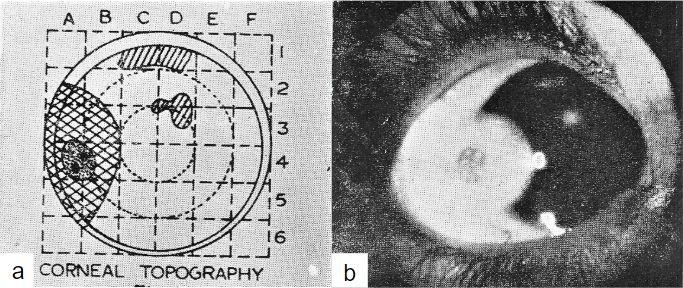 Imagen 4. a Dibujo, b fotografía de quiste dermoide(7).