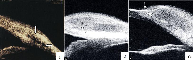 Imagen 5. a. BMU: muestra la extensión de la lesión de alta reflectividad y el plano quirúrgico. b. lesión redondeada de densidad uniforme. c. lesión que compromete la córnea dando lugar a edema epitelial.(9, 10)