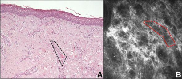 Imagen 8. A. Sección histológica que se corresponderia con B. patrón micro areolar en el tejido conectivo sección(15)