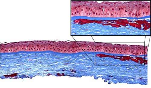 Los depósitos eosinófilos se tiñen de rojo brillante con la tinción tricrómica de Masson (aumento original = 50X con inserto 200X). Fuente: eyerounds.com