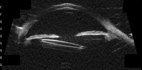 Figura 3. Imagen de UBM que muestra el contacto entre la óptica de una LIO con fijación escleral y el iris. Fuente: Plemel et al.