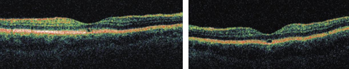 Figura 2: Disrupción del centro foveal, con ausencia de EPR y fotorreceptores